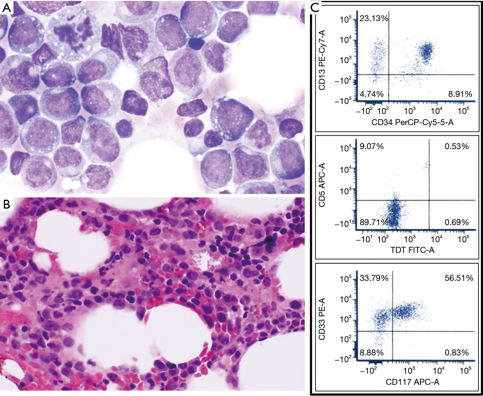 Lineage switch from T-cell lymphoblastic leukemia/lymphoma